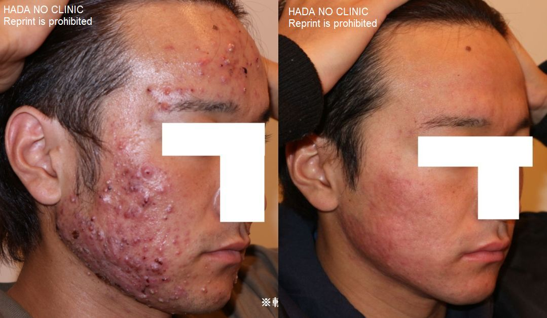 isotretinoin-treatment_before-after